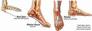 Heel Spur Symptoms  U0026 Treatments