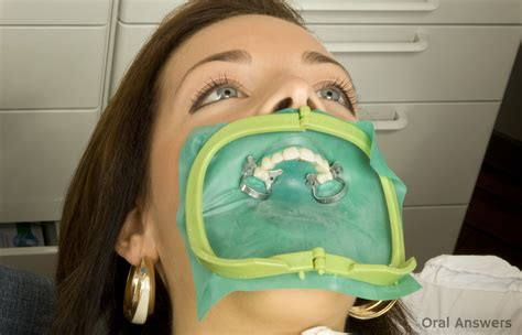 Rubber Dental Dams What They Are And Why Dentists Use Them  Oral Answers