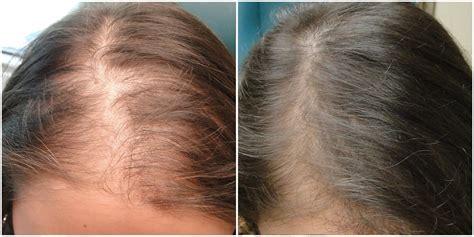 PRP Hair Restoration in Scottdale & Phoenix, AZ - MD Skin