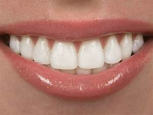 What are Veneers? Cost of Porcelain Veneers Abroad | MEDIGO