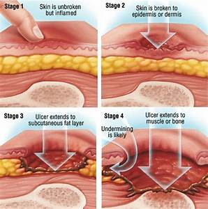 bedsores decubitus ulcers guide causes symptoms and With bed sores stage 1