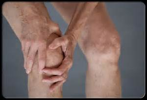 Osteoarthritis Overview and Knee Pain Management Do's & Don'ts Osteoarthritis