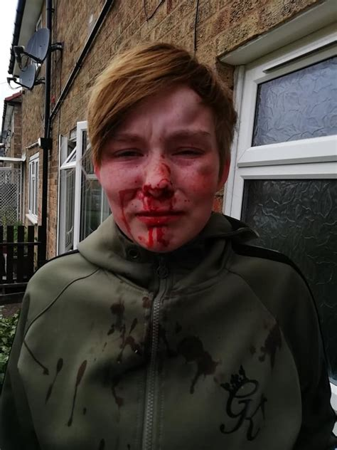 Teenager Beaten Called Ing Lesbian Row Over