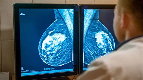 cancer mammogram breast way detecting explain detect doctors why