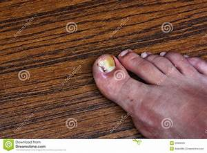 Swollen Ingrown Toe Royalty Free Stock Photo - Image: 33306325