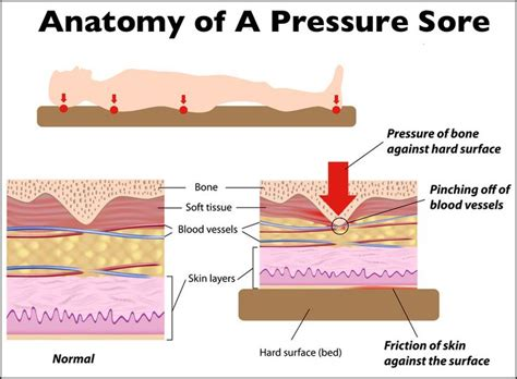 Bed Sore In Continuity Of Skin by Pressure Ulcers From Pressure Search Pressure