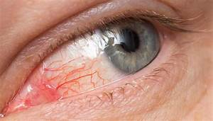 Pink Eye What You Need To Know Vital Record