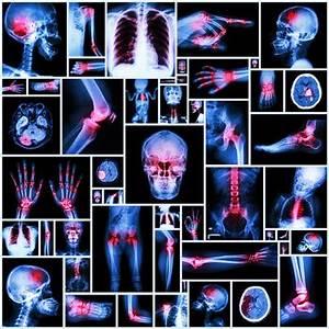 Mikronährstoffe Berechnen : autoimmunerkrankungen imd institut f r medizinische diagnostik labor ~ Themetempest.com Abrechnung