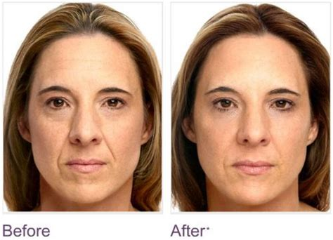 Best Anti Wrinkle firming Cream - advanced Anti Aging