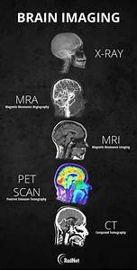 Guide To Different Types Of Brain Imaging   Coolguides In
