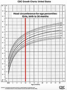 Helmet Faq 39 S Pediatric Neurosurgery