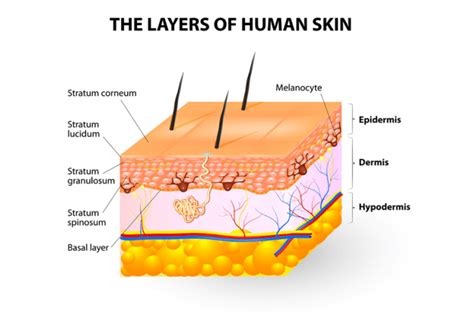 How Are Stretch Marks Formed
