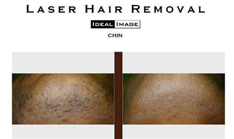 Laser hair removal laser