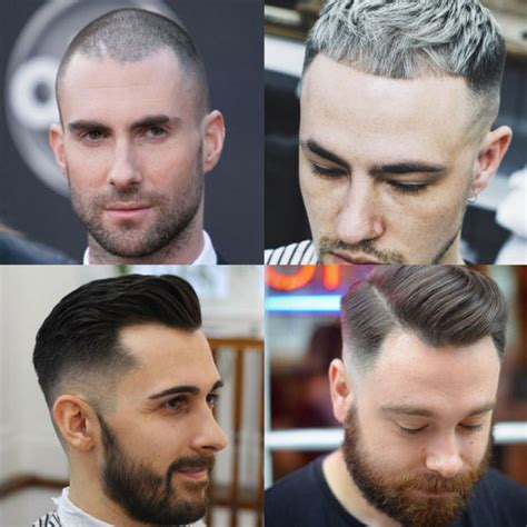 How To Fix A Bad Hairline - Growing Your Hairline Back
