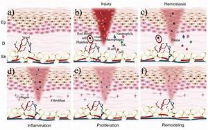 The Wound Healing Phases  A  Layers Of The Healthy Skin
