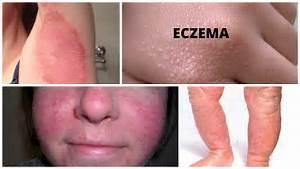 Eczema: Types, Causes, Prevention & Treatments  Alzheimer's Disease Human Papillomavirus Infection