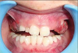 Multicentric peripheral ossifying fibroma: A case report ...