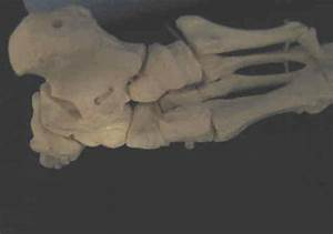 Cuboid Syndrome  U0026 Recurrent Ankle Sprain Physical Therapy