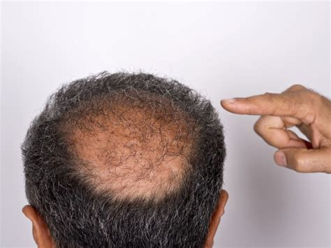 The bald spots that are linked to cancer - Easy Health