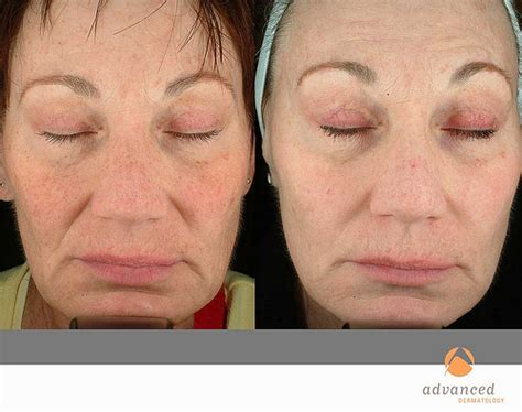 blue light treatment for sun damage photodynamic therapy levulan chicago il advanced