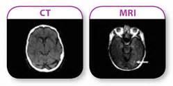 cat scan vs mri pics for gt cat scan machine vs mri