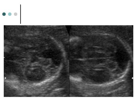 walker dandy syndrome cyst pouch blake variant vermian persistent