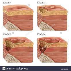 bed sores stages illustration of the 4 stages of a bedsore bedsores or