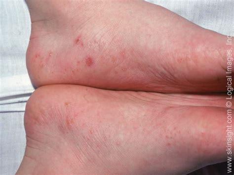 Varieties Of Eczema
