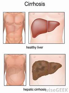 What Are The Different Liver Poisoning Symptoms