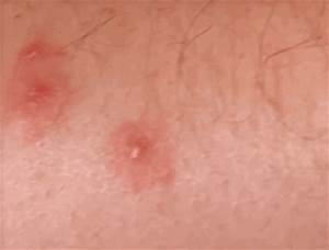 bed bug bite marks pictures remedies symptoms With bed bug marks