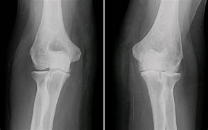 File:XRay ElbowOsteoarthritis RL AP.jpg - Wikimedia Commons