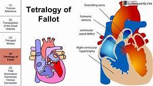 Cyanotic Congenital Heart Diseases - YouTube