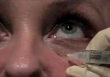 Best doctor for under eye fillers