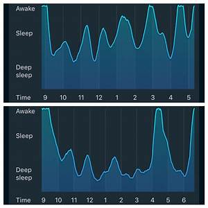 The Difference Between A Normal Nights Sleep  Top  And On Sleep Medication  Bottom