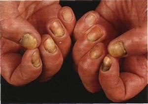Малышева лечение грибка ногтей и стопы