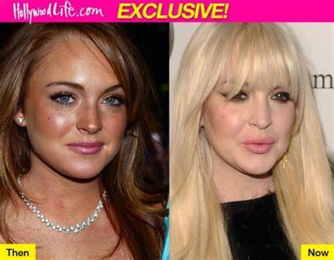 Lindsay Lohan Plastic Surgery: A Minimal Lip Job Done Well