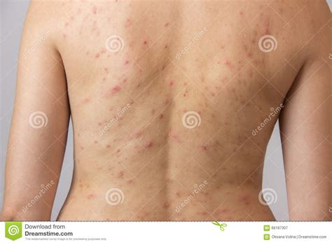 young girl  acne  red  white spots
