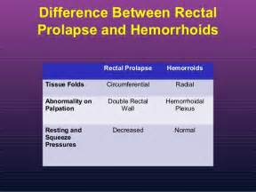 Pelvic Floor Hernia by Rectal Prolapse Cedars Sinai Medical Center Medicine