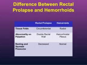 Pelvic Floor Hernia by Rectal Prolapse Cedars Sinai Medical Center Medicine