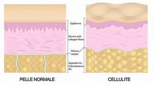Gli stadi della cellulite, dietaLand