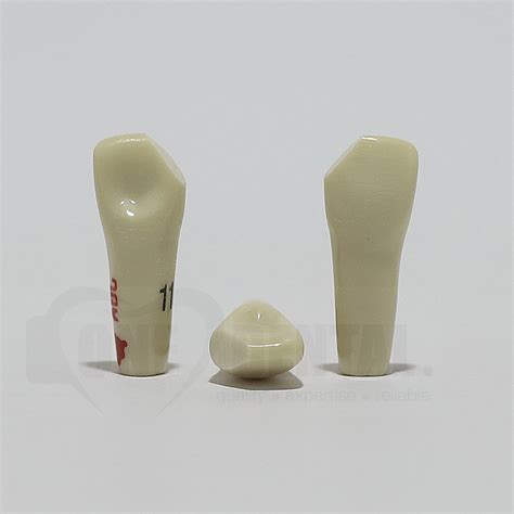 prep tooth adc mesial fracture dental teeth