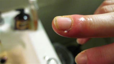 person   swollen finger   cuticle