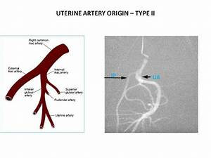 A Anatomical Diagram Illustrates The Uterine Artery As