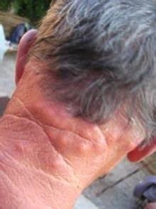 Insecticide Punaise De Lit Pharmacie : traitement piqures puces de lit ~ Dailycaller-alerts.com Idées de Décoration