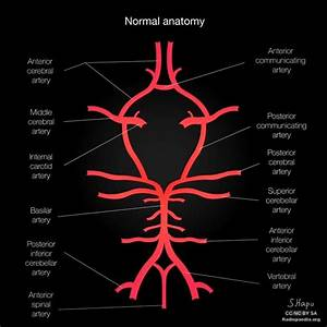 In The Circle Of Willis  What Are The 3 Arteries Going