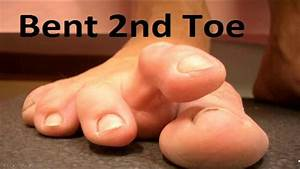 Simple Tricks For Claw  U0026 Hammer Toes  Home Treatment Guide