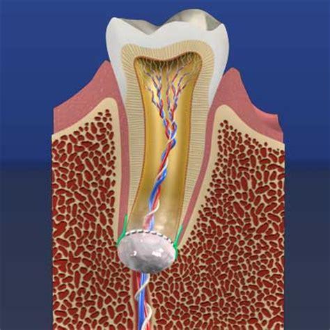 regenerative endodontics saving teeth  stem cells