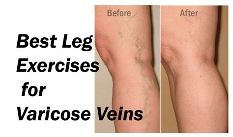 Best Leg Excercises To Cure Varicose Veins In A Much. Appliance Repair Escondido Ca. The Darkness Haunted House Wrist Bands Custom. Online Proofreading Service Fiat 500c Deals. Microsoft Certification Prices. Freight Moving Services Greek Yogurt Industry. Belkin Router Software Shadows In Photography. New York Life Deferred Income Annuity. Office Space That Would Be Great