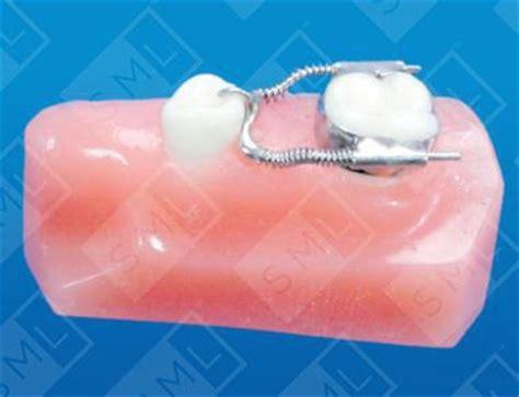 sliding loop space regainer ul space maintainer dental