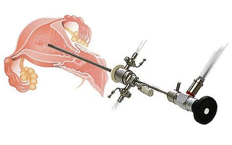operative hysteroscopy recovery center  jalgaon